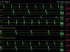twisted-media-medical-screen-shot-2014-06-03-at-9-24-04-am